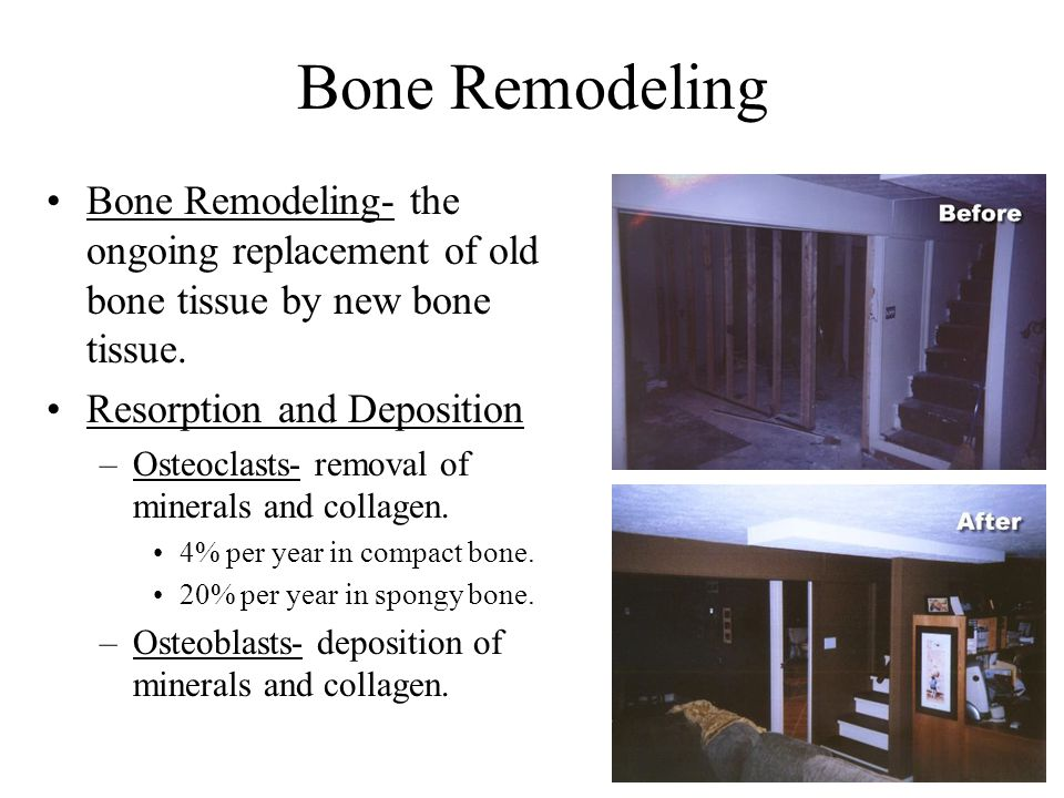 Bone Remodeling Bone Remodeling- the ongoing replacement of old bone tissue by new bone tissue. Resorption and Deposition.