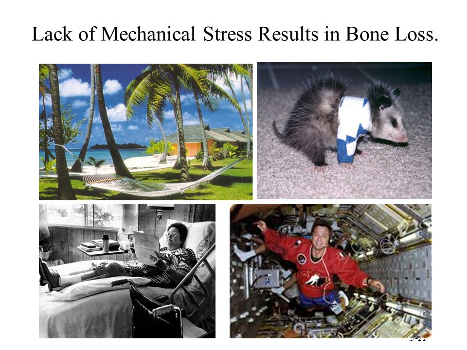 Lack of Mechanical Stress Results in Bone Loss.