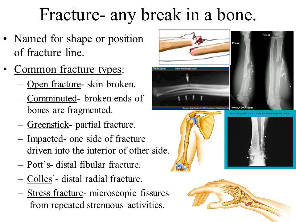 Fracture- any break in a bone.