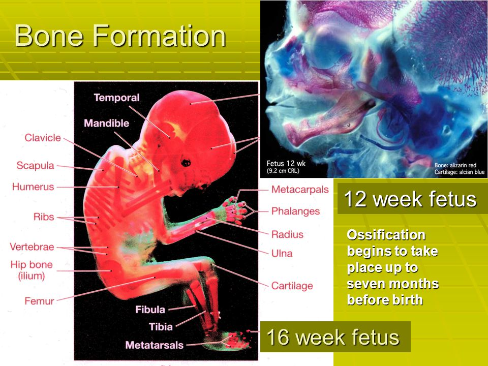 Bone Formation 12 week fetus 16 week fetus
