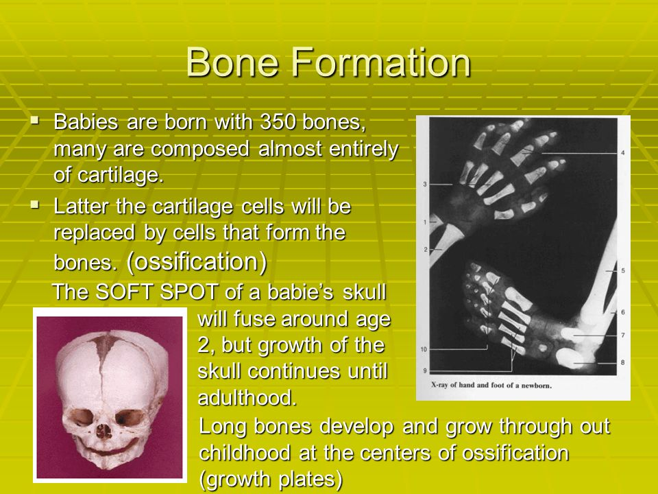 Bone Formation Babies are born with 350 bones, many are composed almost entirely of cartilage.