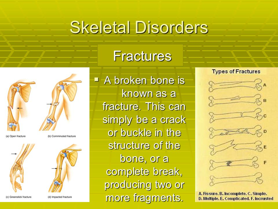 Skeletal Disorders Fractures