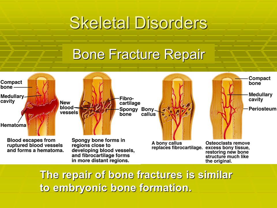 Skeletal Disorders Bone Fracture Repair