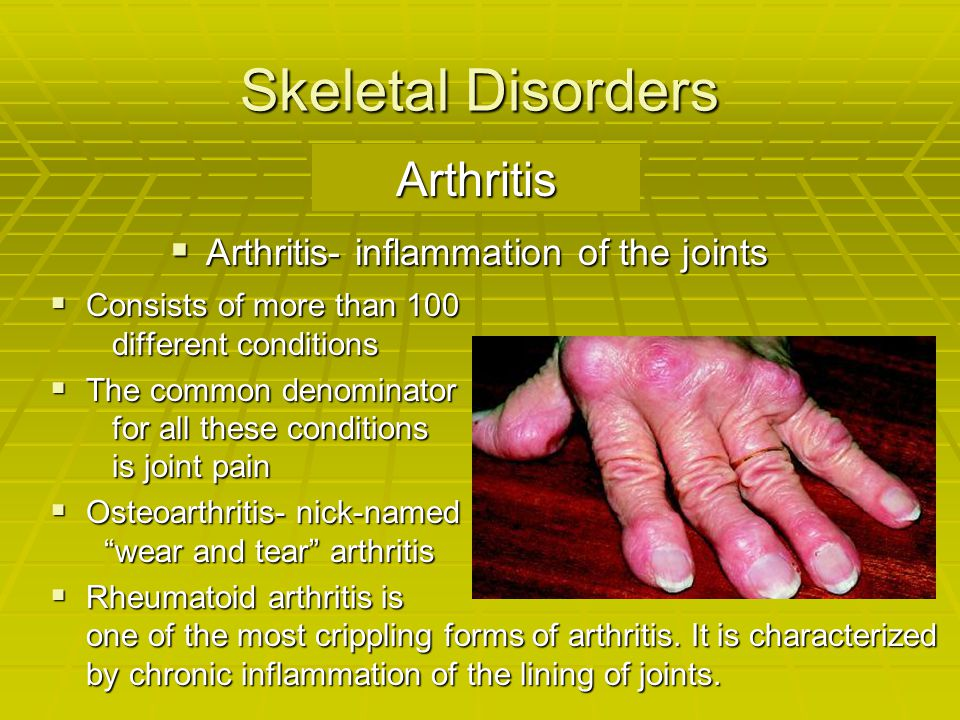 Skeletal Disorders Arthritis Arthritis- inflammation of the joints