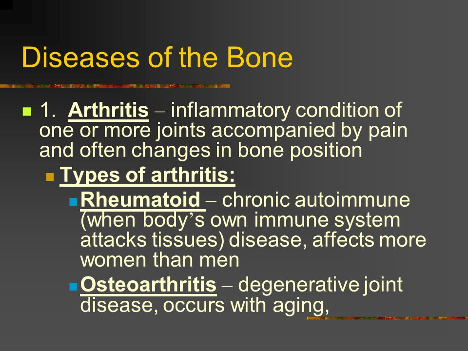 Diseases of the Bone 1. Arthritis – inflammatory condition of one or more joints accompanied by pain and often changes in bone position.