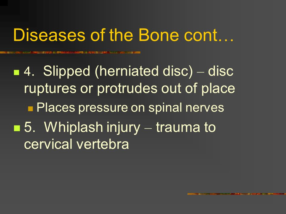 Diseases of the Bone cont…