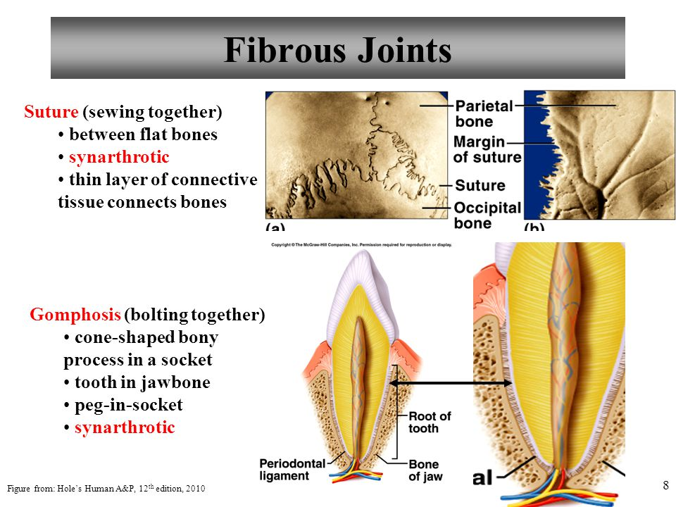 Fibrous Joints Suture (sewing together) between flat bones