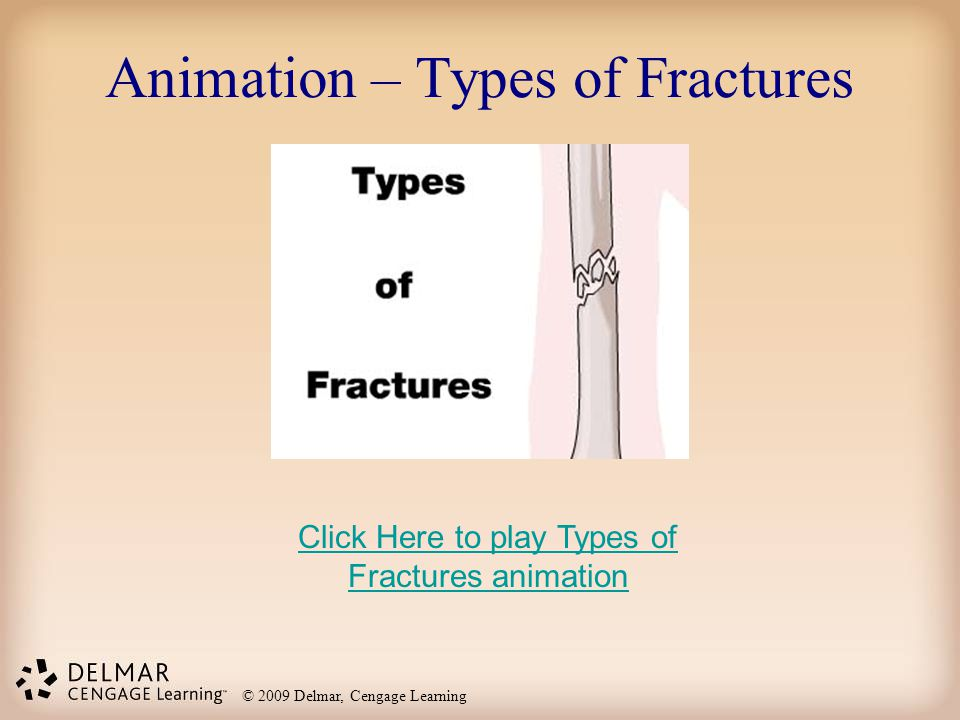 Animation – Types of Fractures