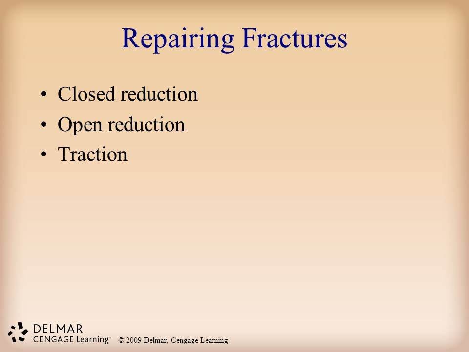 Repairing Fractures Closed reduction Open reduction Traction