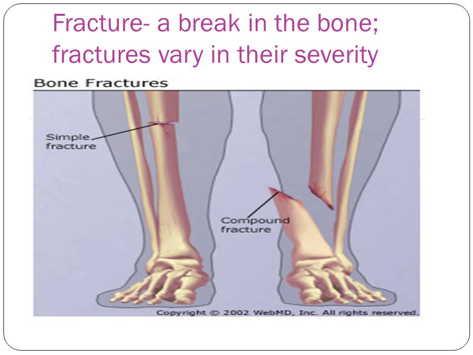 Fracture- a break in the bone; fractures vary in their severity