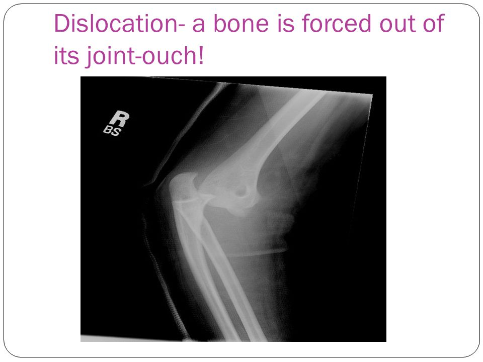 Dislocation- a bone is forced out of its joint-ouch!