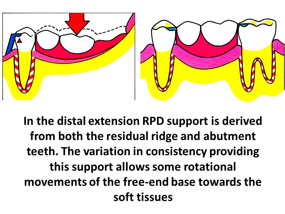 In the distal extension RPD support is derived from both the residual ridge and abutment teeth.