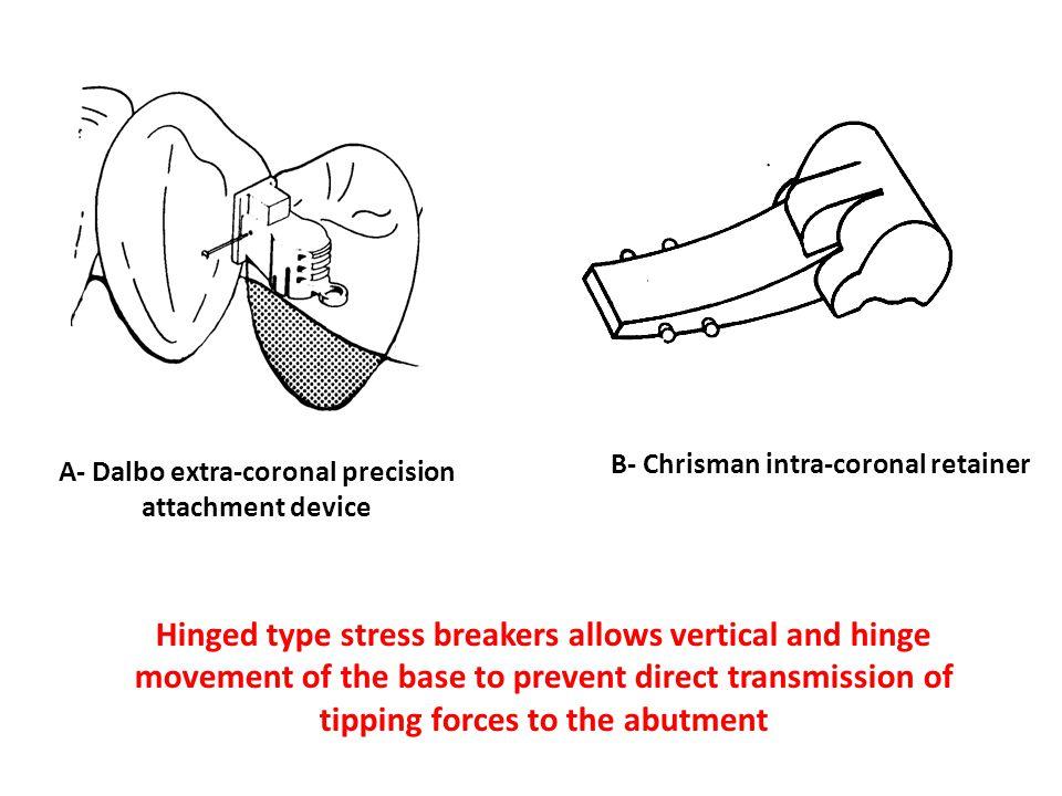B- Chrisman intra-coronal retainer