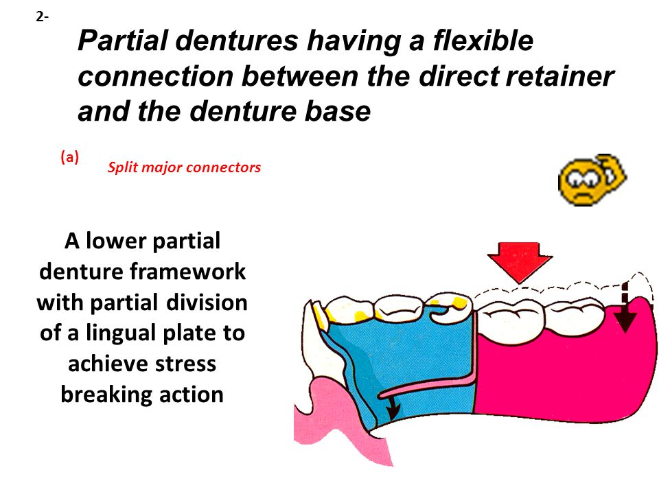 2- Partial dentures having a flexible connection between the direct retainer and the denture base. (a)