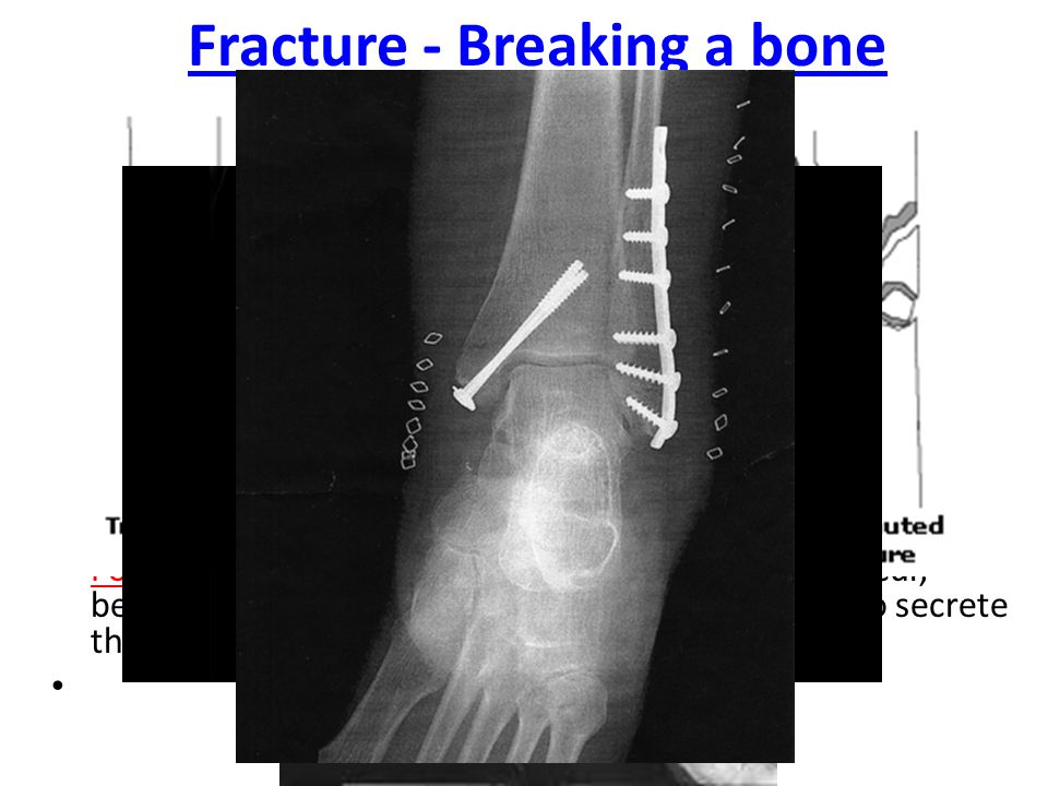 Fracture - Breaking a bone
