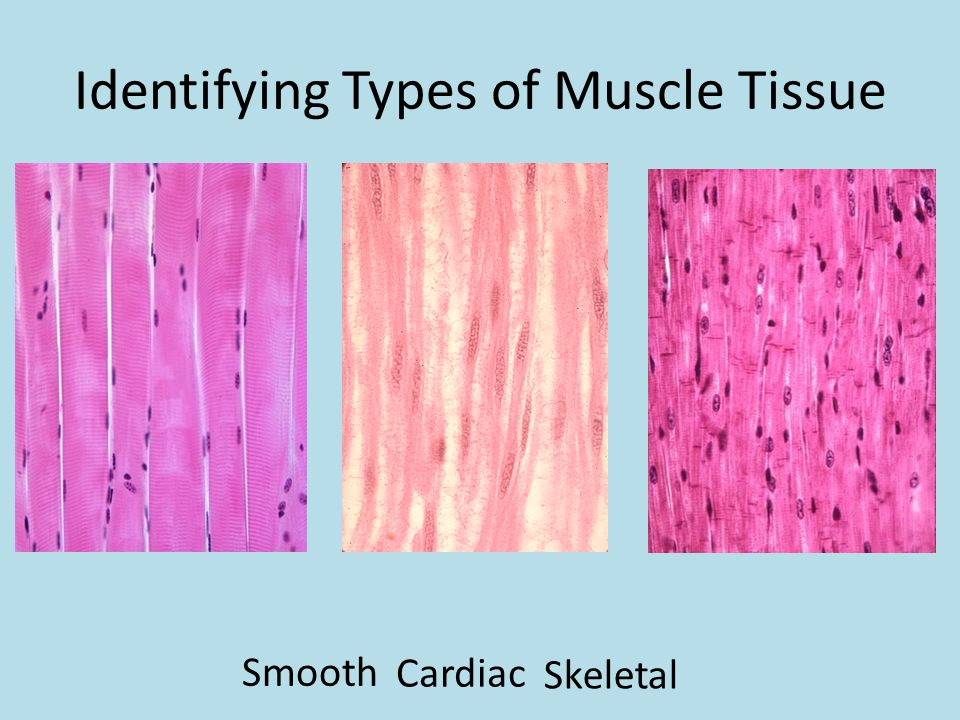 Identifying Types of Muscle Tissue