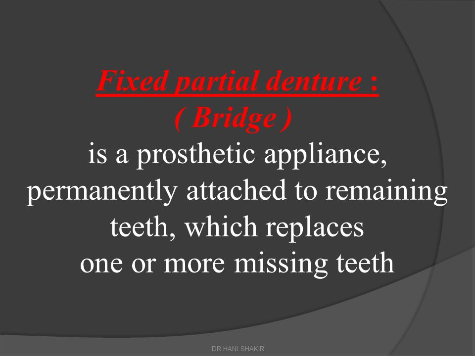 Fixed partial denture : ( Bridge ) is a prosthetic appliance, permanently attached to remaining teeth, which replaces one or more missing teeth