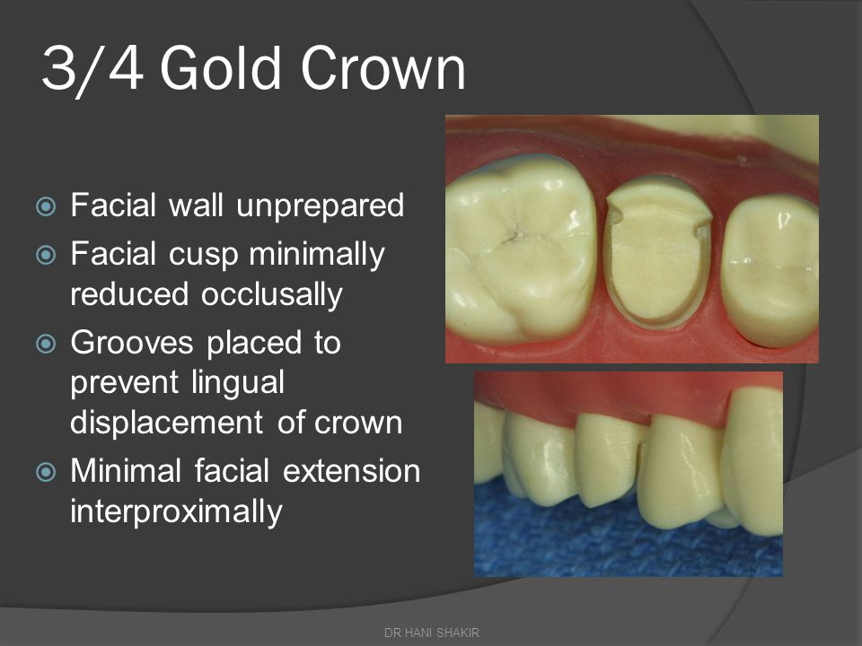 3/4 Gold Crown Facial wall unprepared