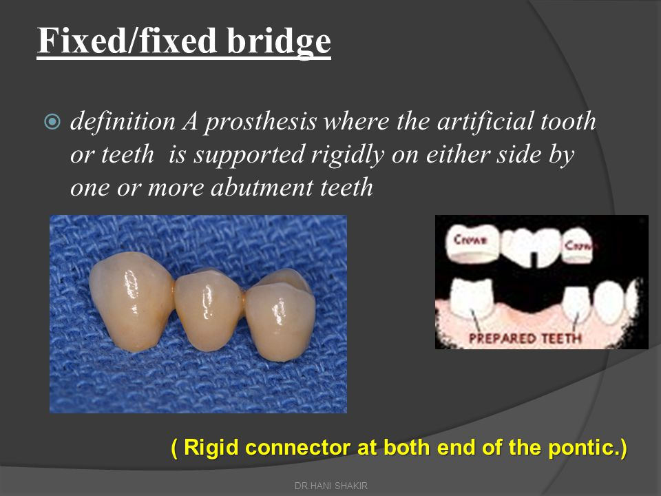 Fixed/fixed bridge definition A prosthesis where the artificial tooth or teeth is supported rigidly on either side by one or more abutment teeth.