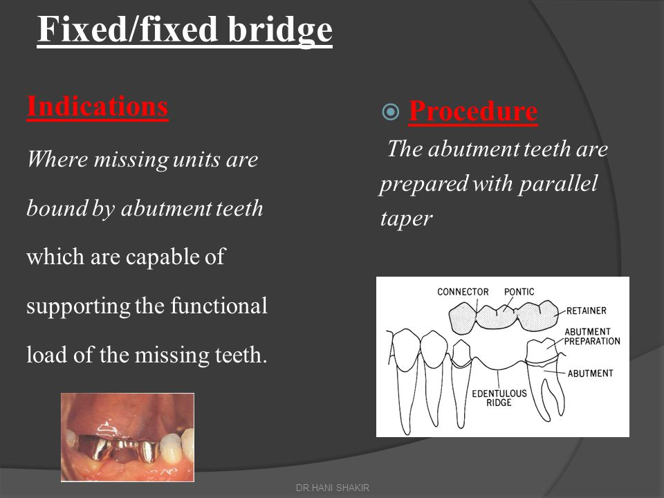 Fixed/fixed bridge Indications Procedure Where missing units are