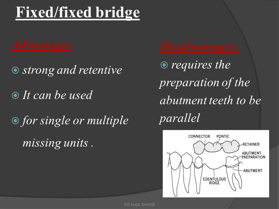 Fixed/fixed bridge Advantages Disadvantages. strong and retentive