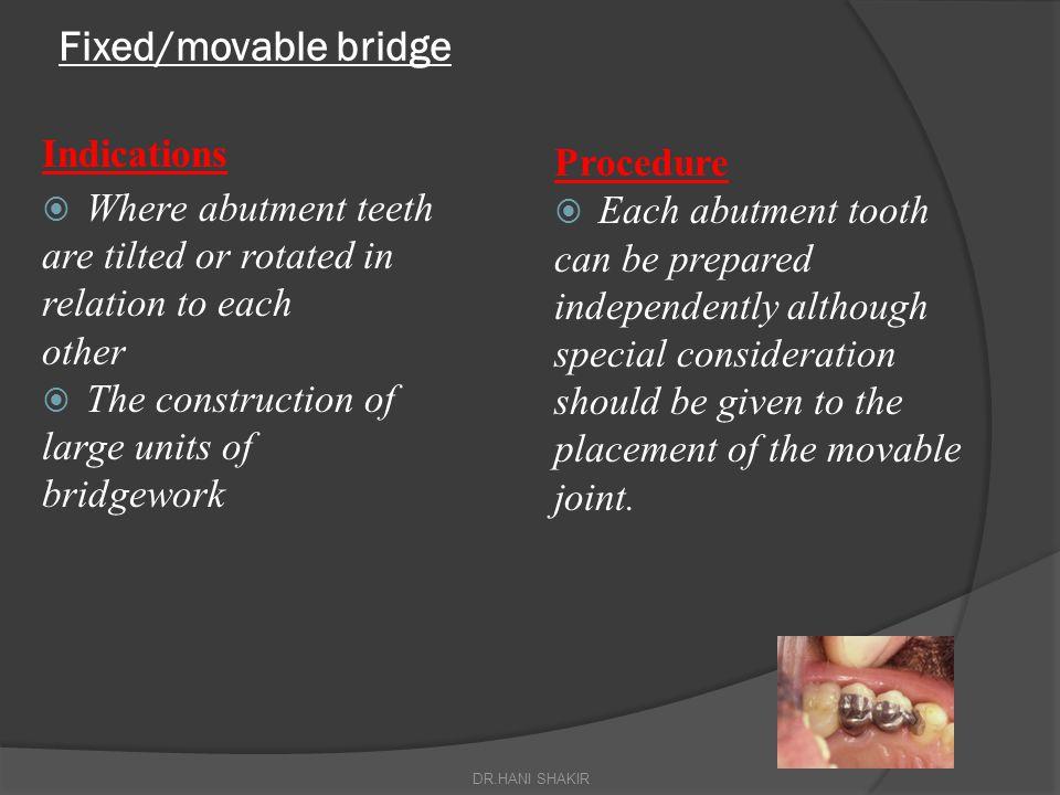 Fixed/movable bridge Indications Procedure Where abutment teeth