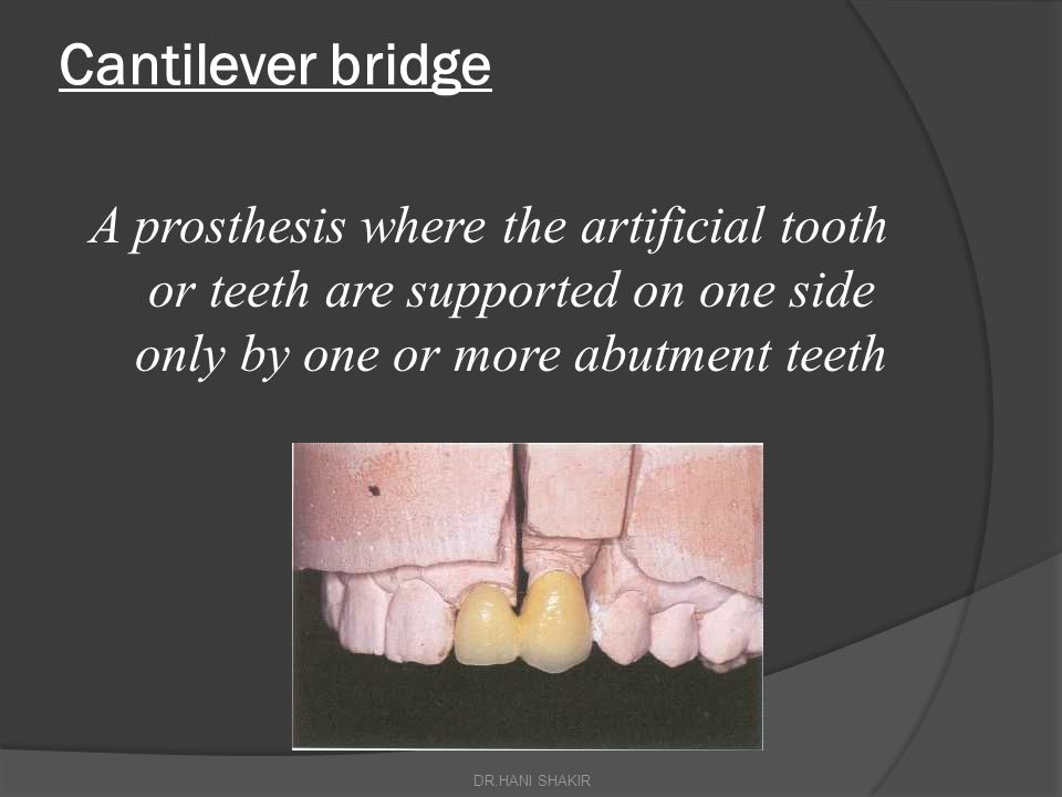 Cantilever bridge A prosthesis where the artificial tooth or teeth are supported on one side only by one or more abutment teeth.