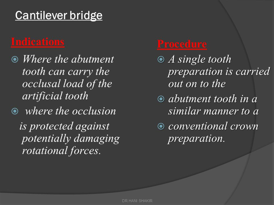 Cantilever bridge Indications Procedure