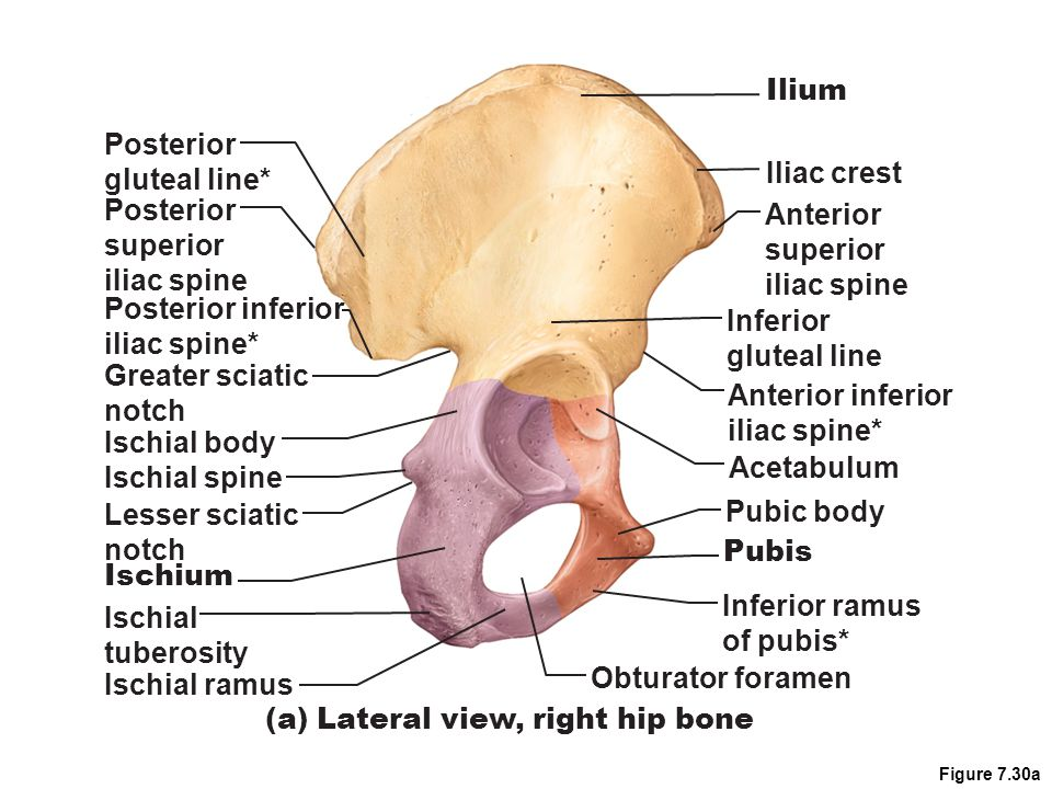 (a) Lateral view, right hip bone