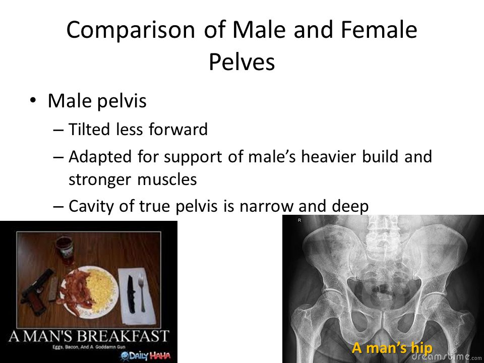 Comparison of Male and Female Pelves