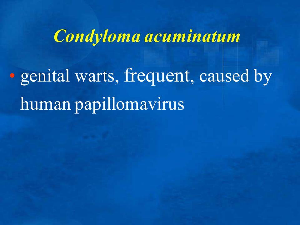 Condyloma acuminatum genital warts, frequent, caused by human papillomavirus
