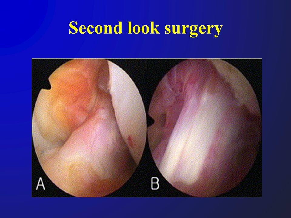 Second look surgery