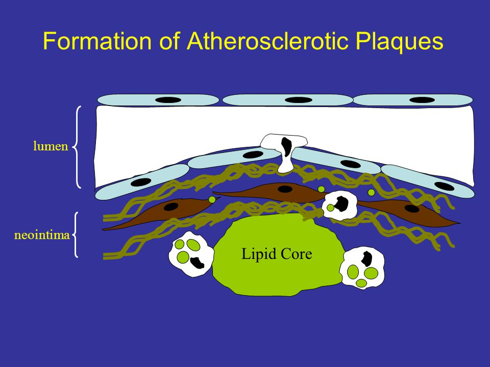 Formation of Atherosclerotic Plaques