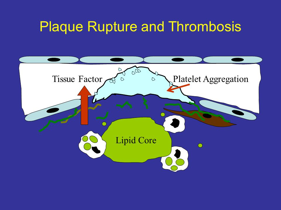 Plaque Rupture and Thrombosis