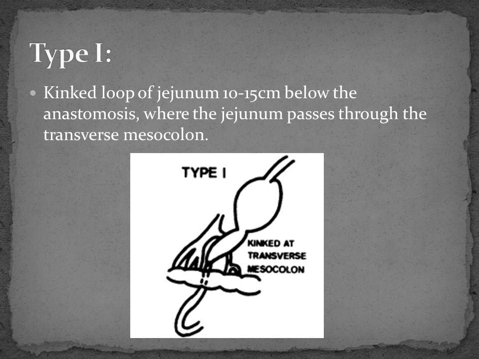 Type I: Kinked loop of jejunum 10-15cm below the anastomosis, where the jejunum passes through the transverse mesocolon.
