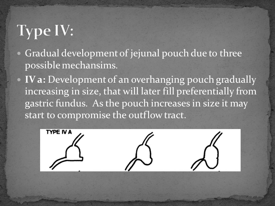 Type IV: Gradual development of jejunal pouch due to three possible mechansims.