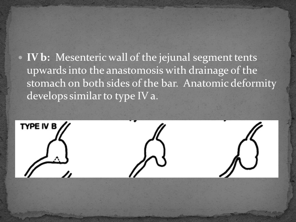 IV b: Mesenteric wall of the jejunal segment tents upwards into the anastomosis with drainage of the stomach on both sides of the bar.