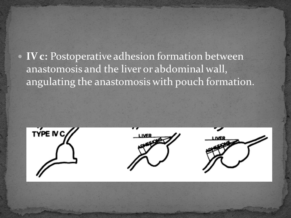 IV c: Postoperative adhesion formation between anastomosis and the liver or abdominal wall, angulating the anastomosis with pouch formation.