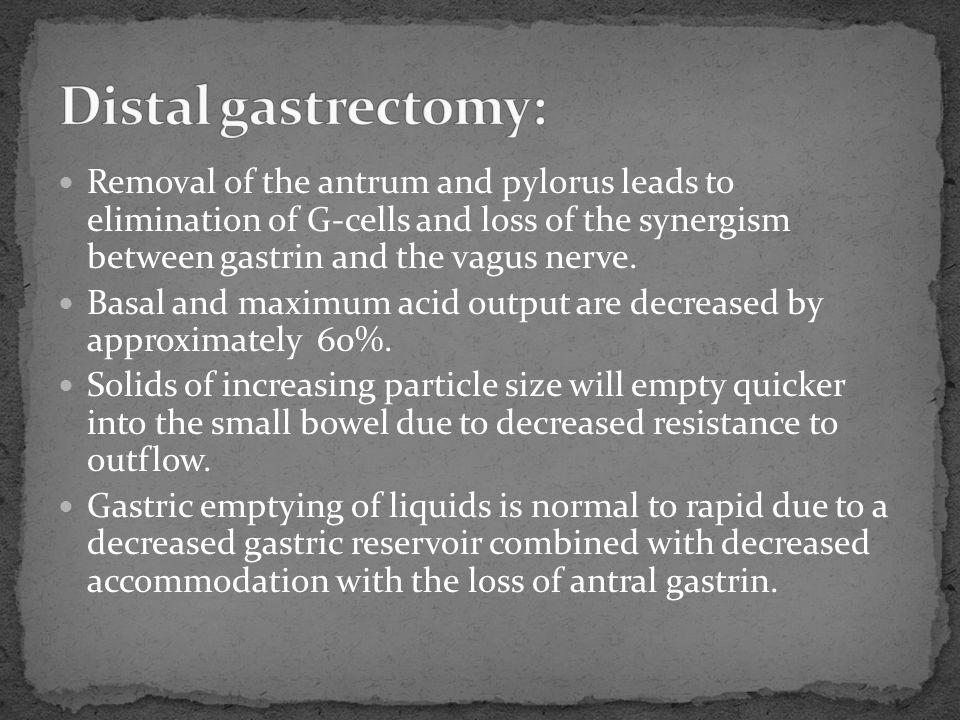 Distal gastrectomy: