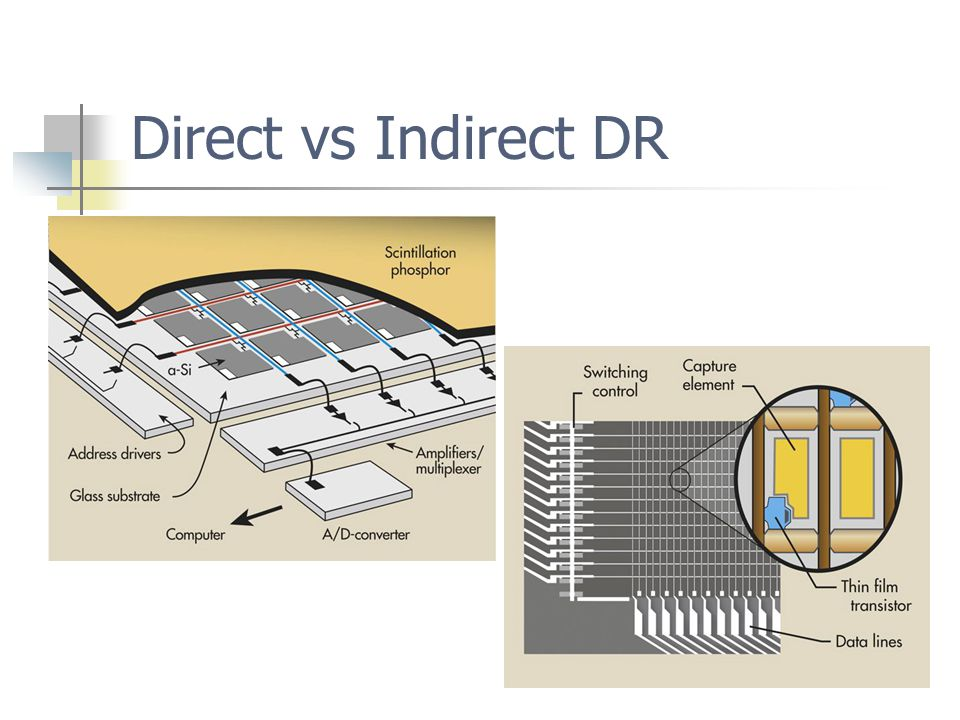 Direct vs Indirect DR