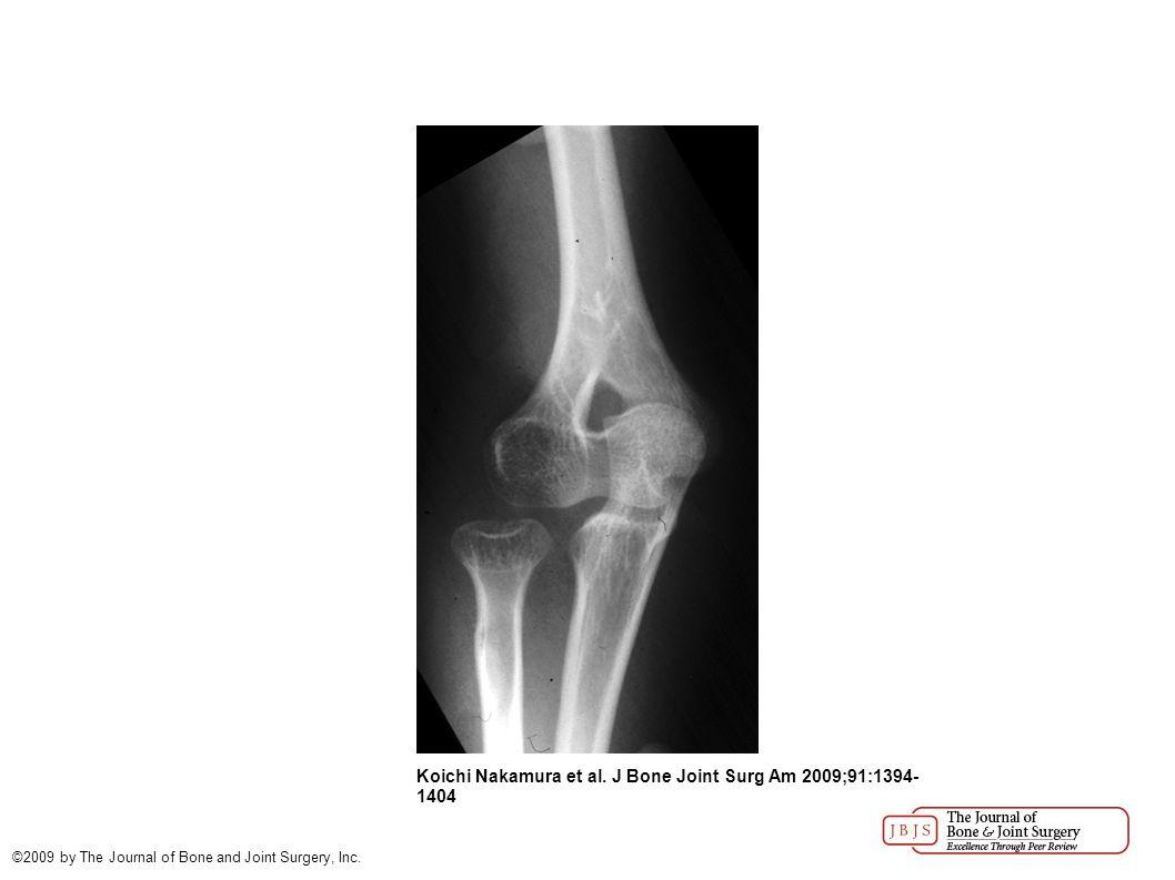 Koichi Nakamura et al. J Bone Joint Surg Am 2009;91:1394-1404