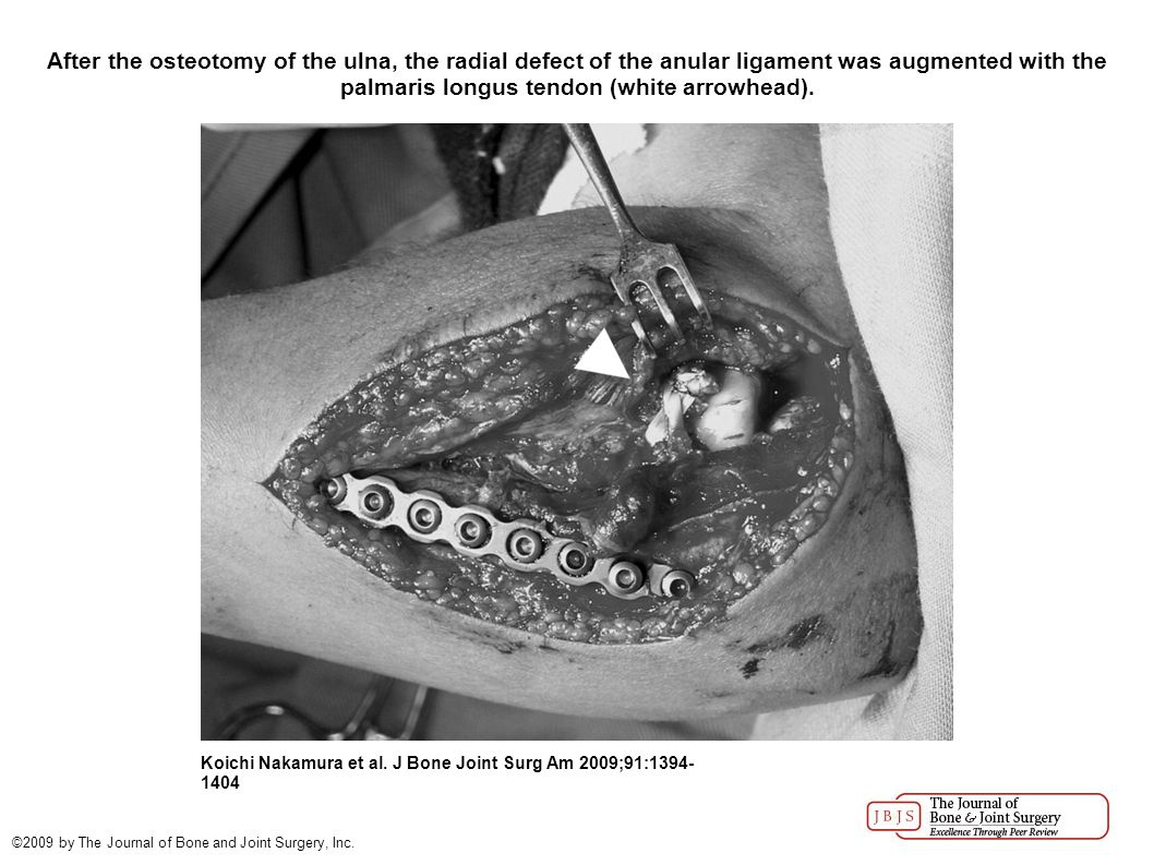After the osteotomy of the ulna, the radial defect of the anular ligament was augmented with the palmaris longus tendon (white arrowhead).