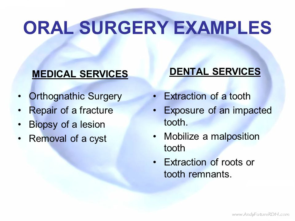 ORAL SURGERY EXAMPLES MEDICAL SERVICES DENTAL SERVICES