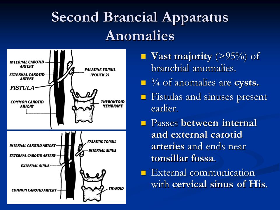 Second Brancial Apparatus Anomalies