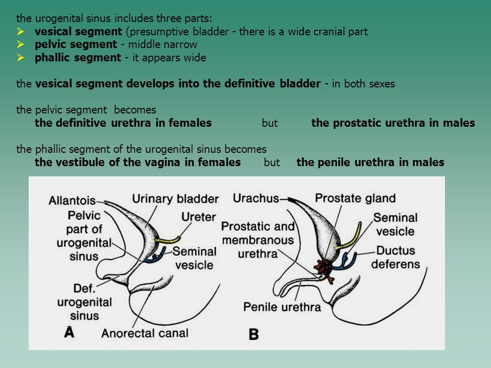 the urogenital sinus includes three parts: