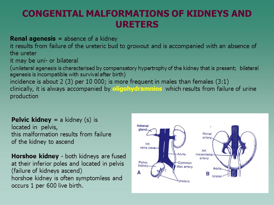 CONGENITAL MALFORMATIONS OF KIDNEYS AND URETERS