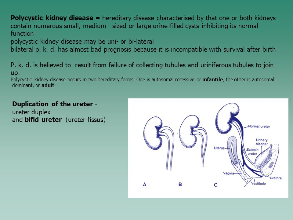 polycystic kidney disease may be uni- or bi-lateral
