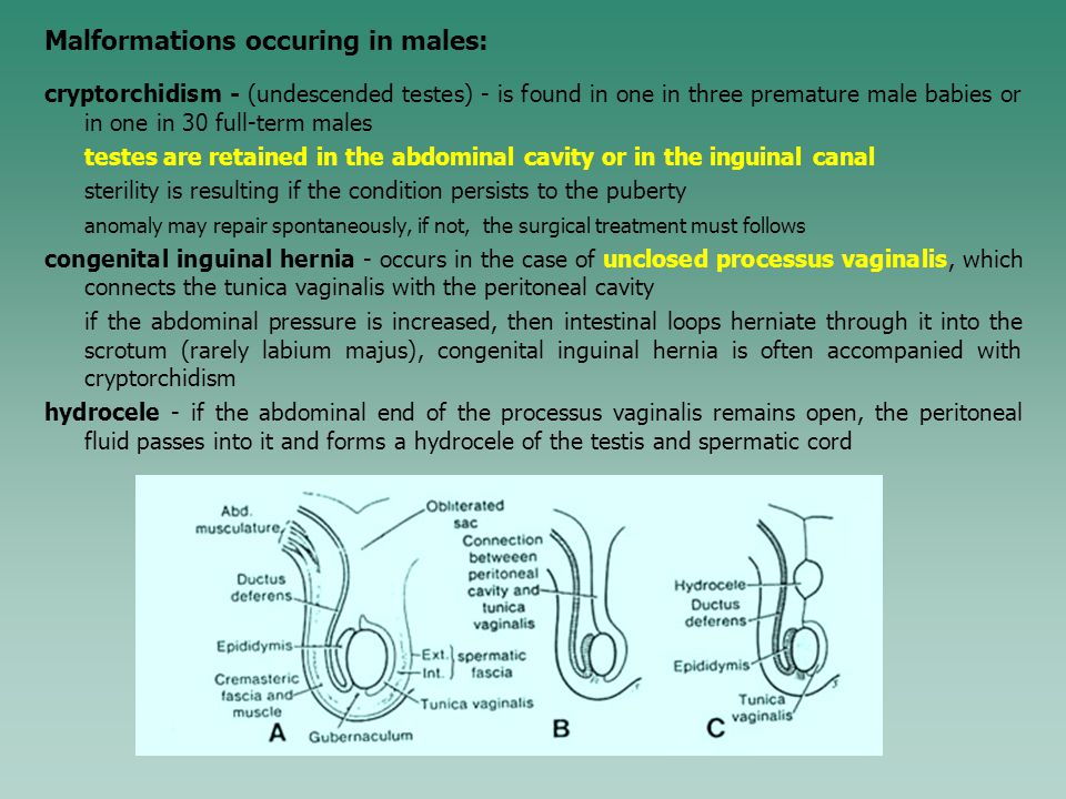 Malformations occuring in males: