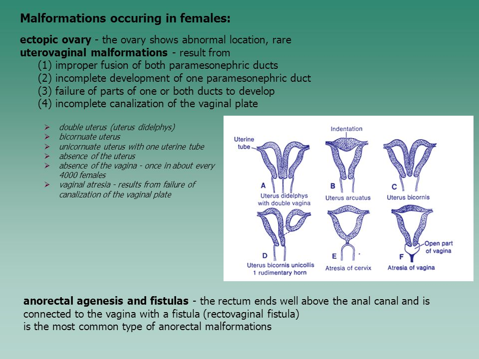 Malformations occuring in females: