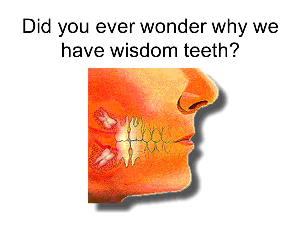 Did you ever wonder why we have wisdom teeth